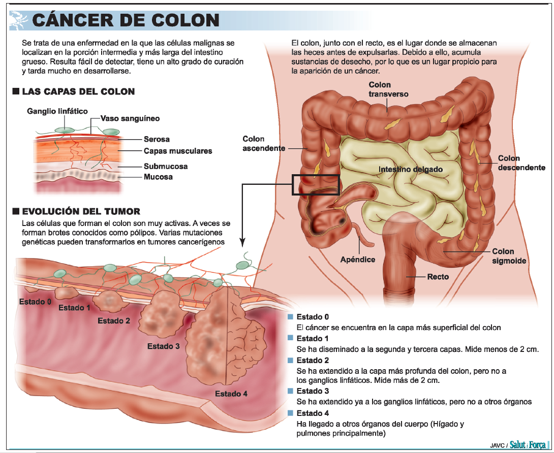 sintomas cancer colorectal