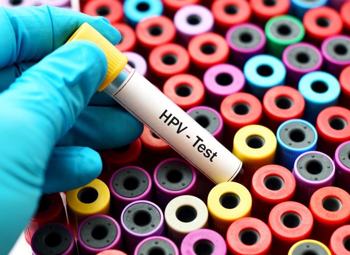 que faire avec un papillomavirus hpv infection