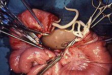 define helminth medical term