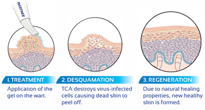 wart treatment chemical