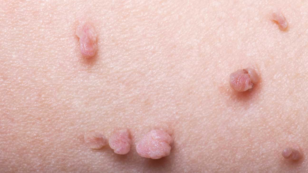 hpv and skin warts)