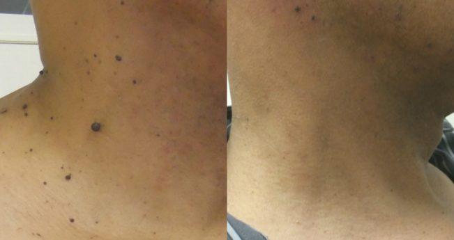 cicatrici după îndepărtarea verucilor genitale