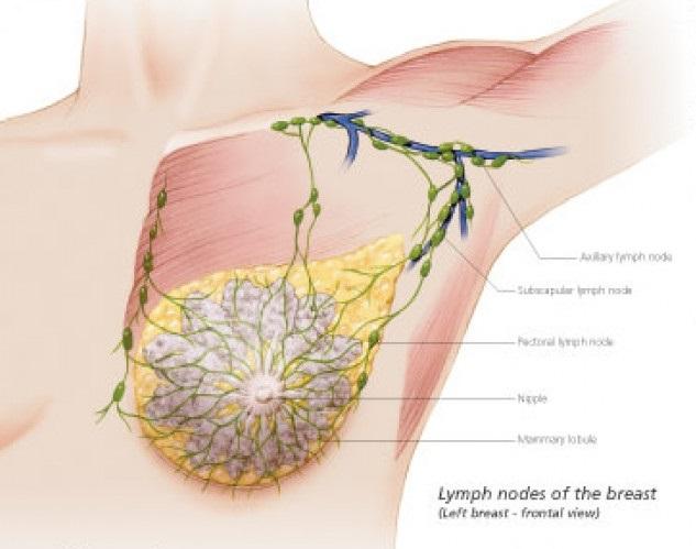 cancerul mamar etiologie semne de papilom de viermi