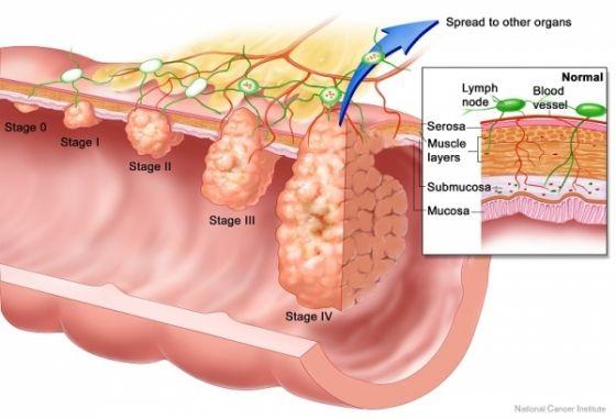 cancerul la colon human papillomavirus vaccine in french