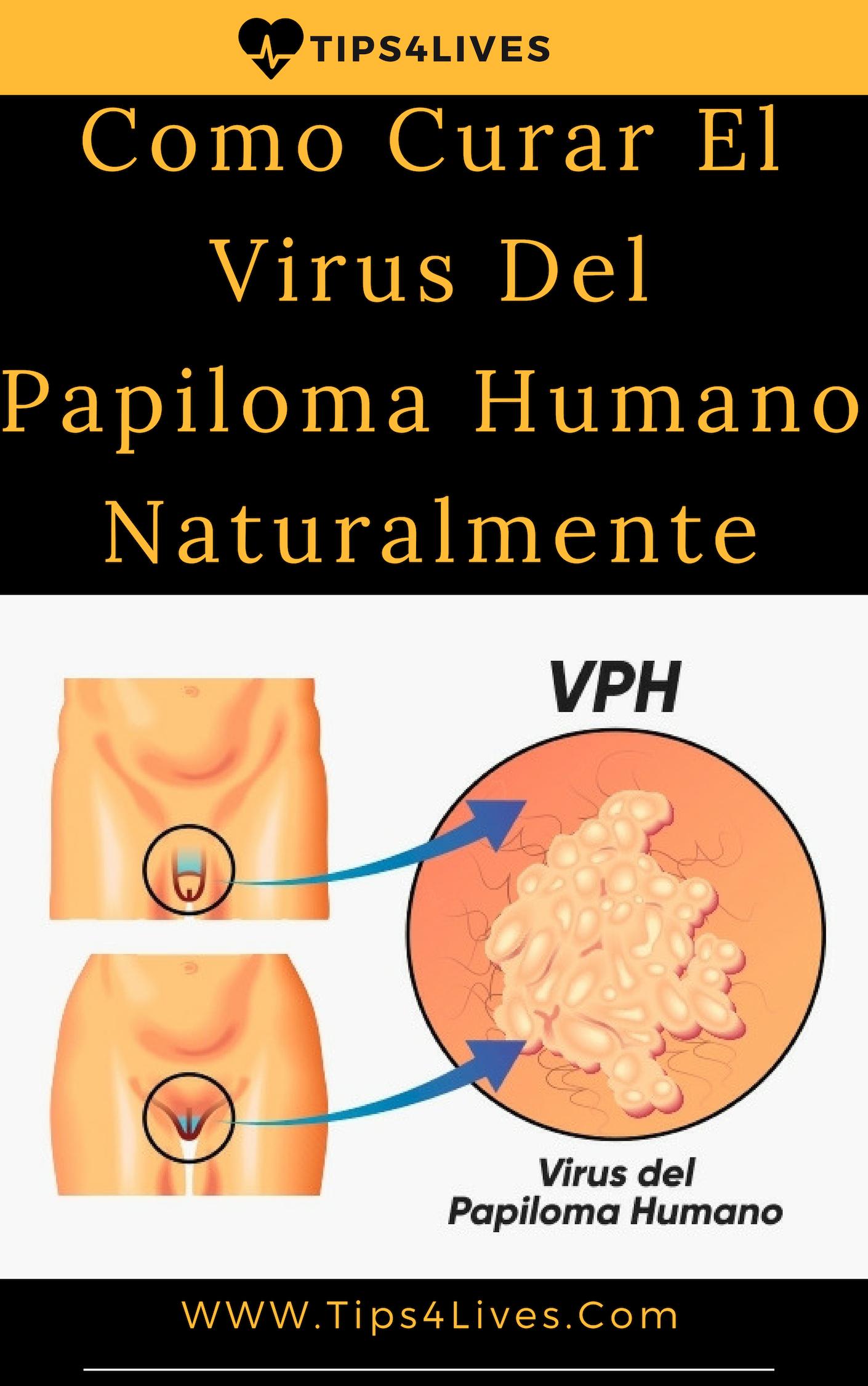 tratamiento del papiloma virus)