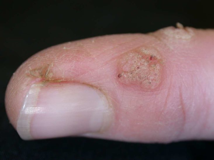 wart virus in humans