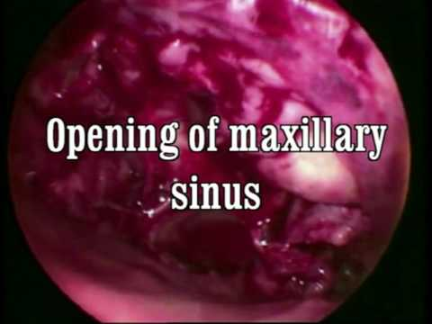 Inverted papilloma surgery removal