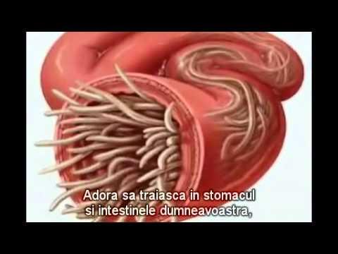 vierme rotunde în corpul uman)