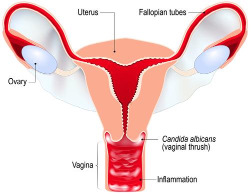 candidoză negi genitale la femei simptome