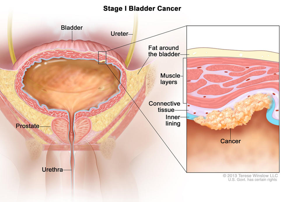 Can hpv cause bladder cancer, Papilloma virus e colposcopia, Hpv and urinary problems