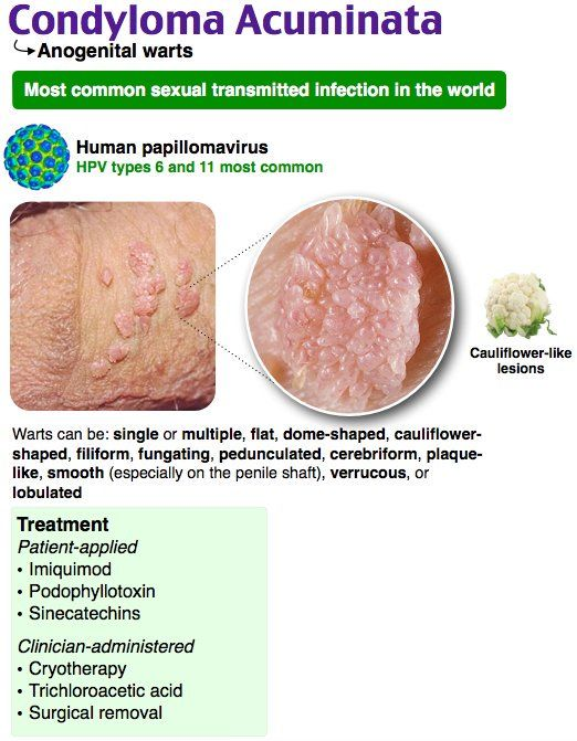condyloma acuminatum hpv vaccine ovarian cancer epithelial tumors