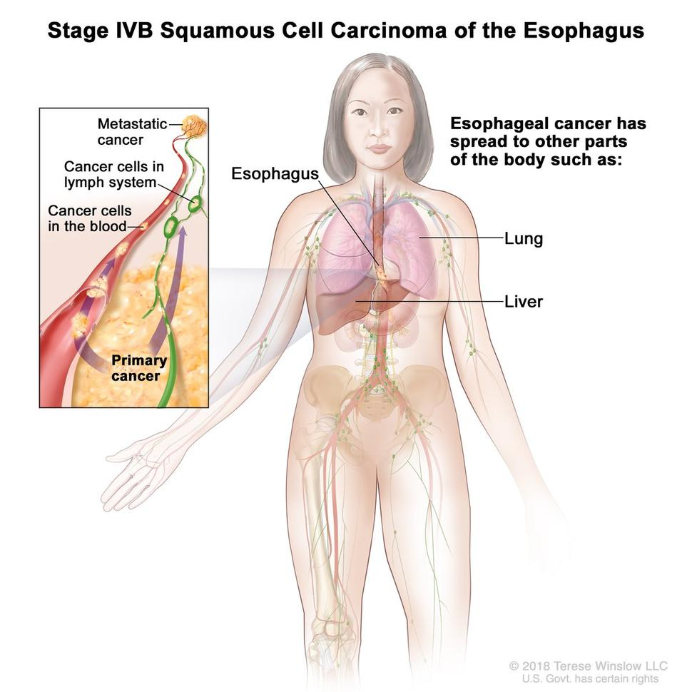 can hpv cause esophageal cancer