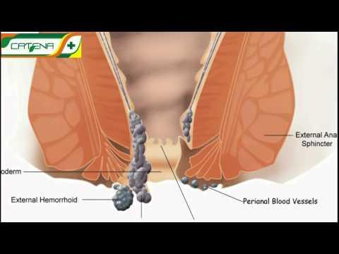 viermi și hemoroizi