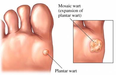 wart on foot cancer