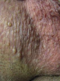 hpv warts scrotum)