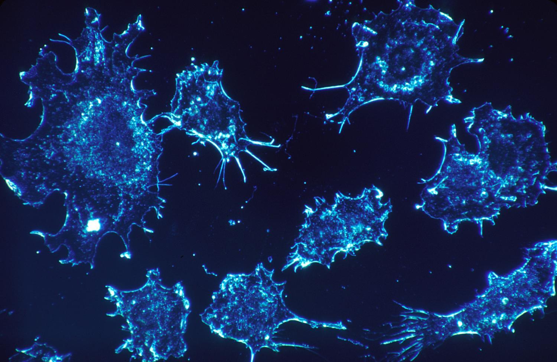 Sarcoma cancer aggressive Sarcoma cancer stages. Specificații