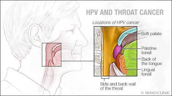 Human papilloma virus negatif