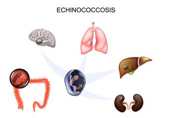 il papilloma virus fa dimagrire regulatoare de detoxifiere
