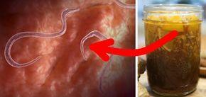 parazit pinworm)