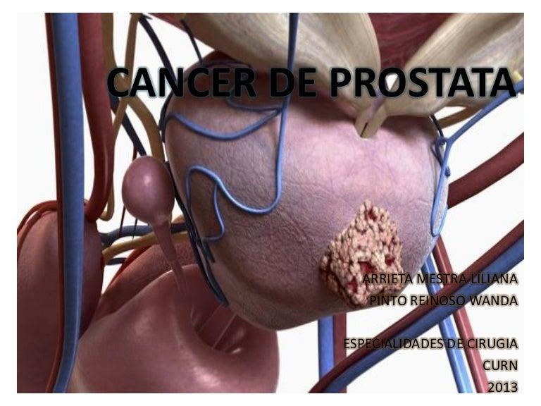 cancer de prostata nivel 4)