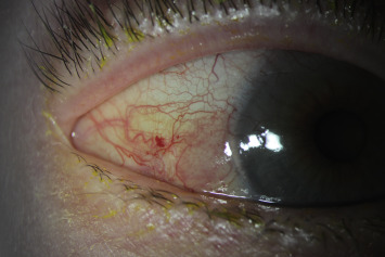 Papilloma conjunctiva treatment
