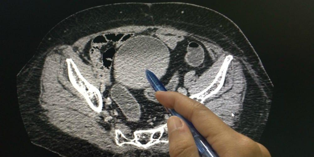 ovarian cancer ct scan verucile genitale le fac rău