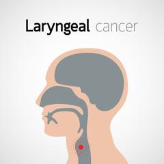 cancerul laringian se vindeca