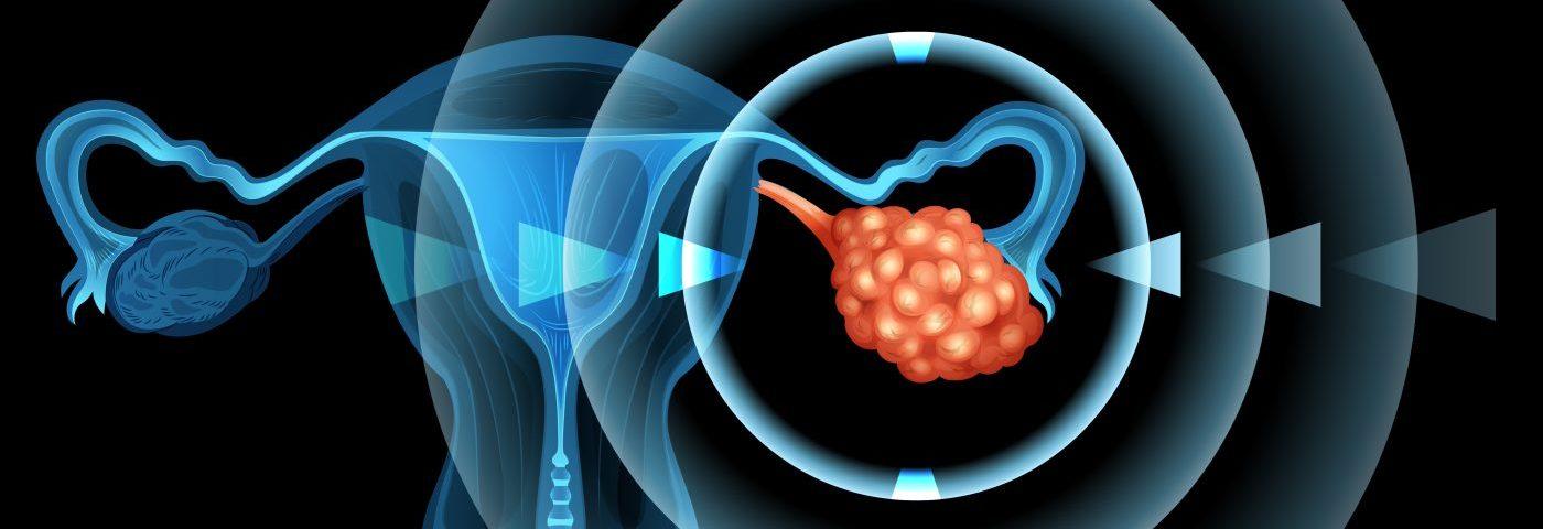 Cancerul endometrial: diagnostic și tratament – triplus.ro