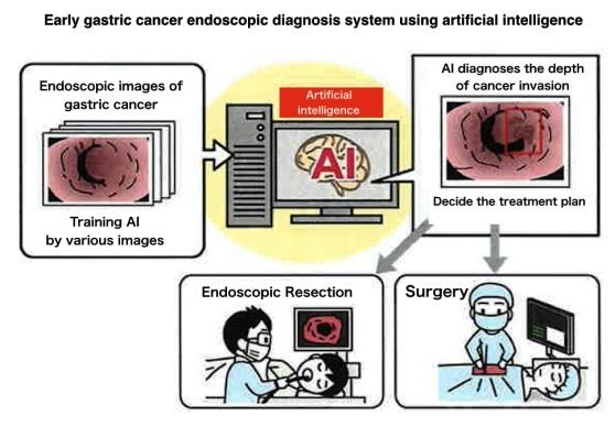 abdominal cancer diagnosis)