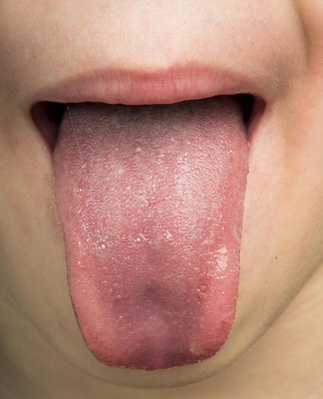 hpv lip treatment)