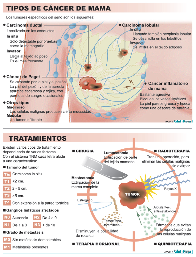 cancer hormonal infiltrant)