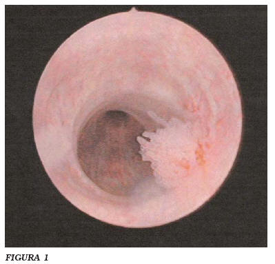 cancer de uretra y vejiga