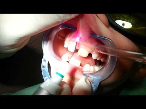 papilloma del frenulo labiale superiore