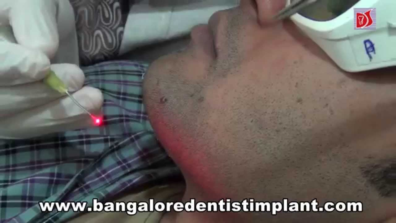 wart removal treatment in bangalore)