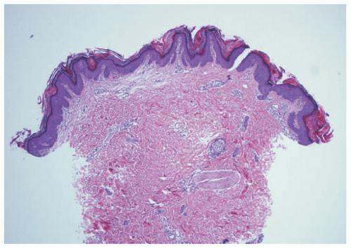 papillomatous epidermal acanthosis)