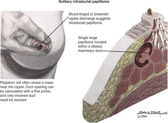 Intraductal papilloma surgery complications - Intraductal papilloma surgical procedure