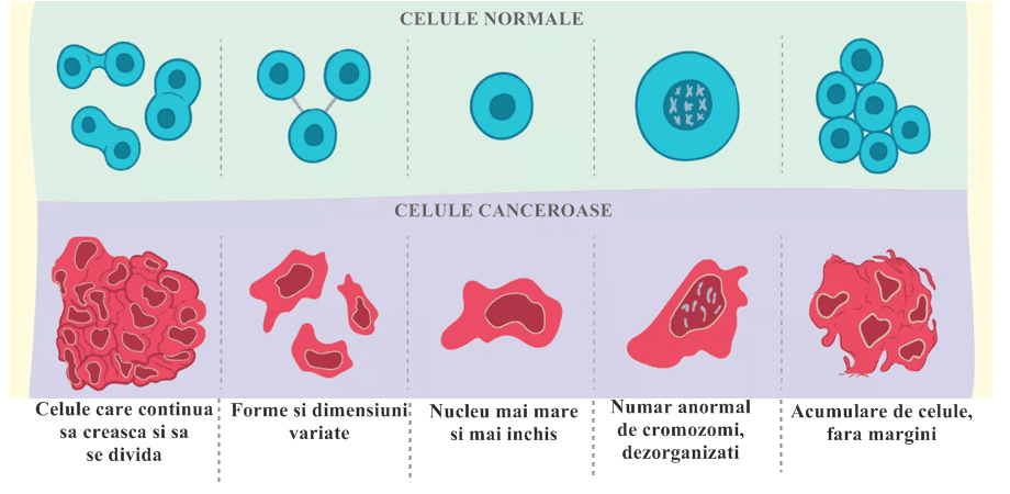 Care este diferenta intre cancer malign si benign? | triplus.ro