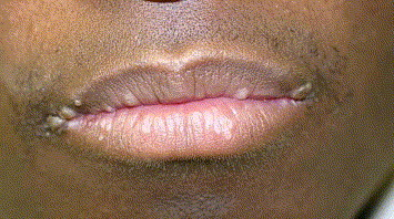 hpv lip treatment