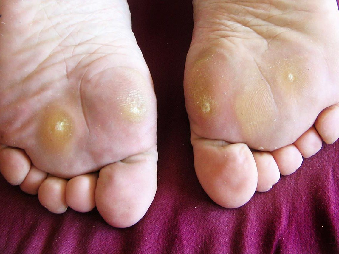 Wart on foot has turned black
