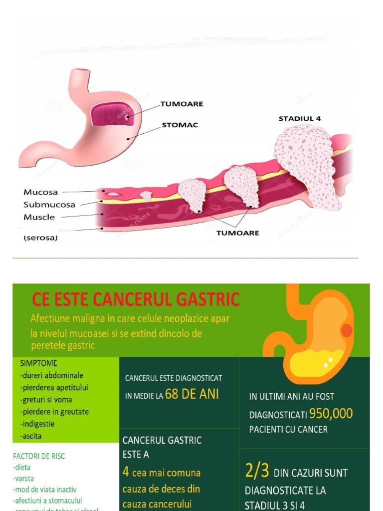 cancer gastric stadiul 2