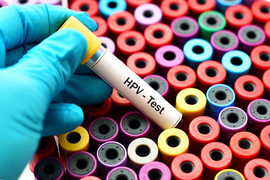 Contamination papillomavirus chez l homme. Papillomavirus behandlung
