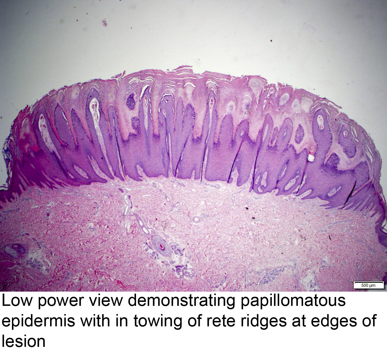 hpv wart histology