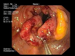 cancer colon que es tratamentul ascitei la gravide