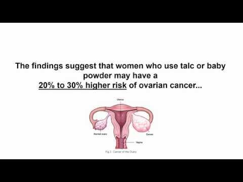 cancer ovar stadializare condiloame vaginale cum se definesc