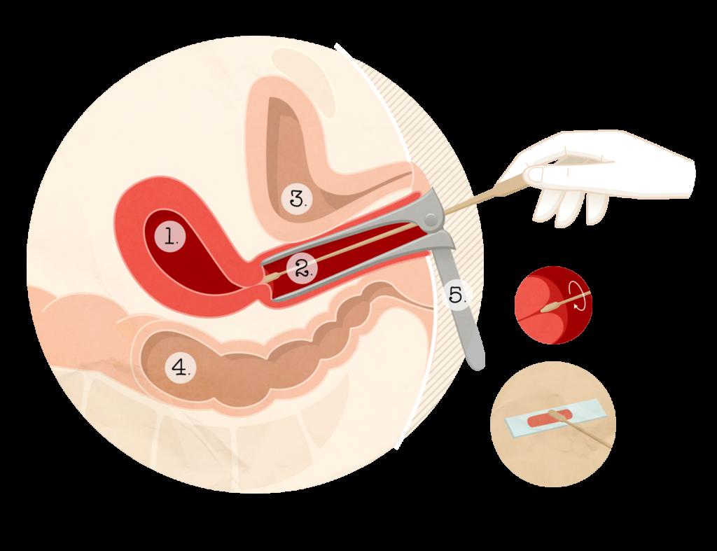 Vaccin papillomavirus et frottis