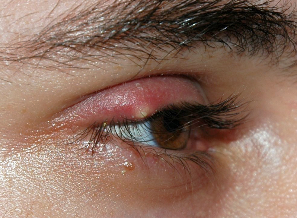 papilloma occhio)