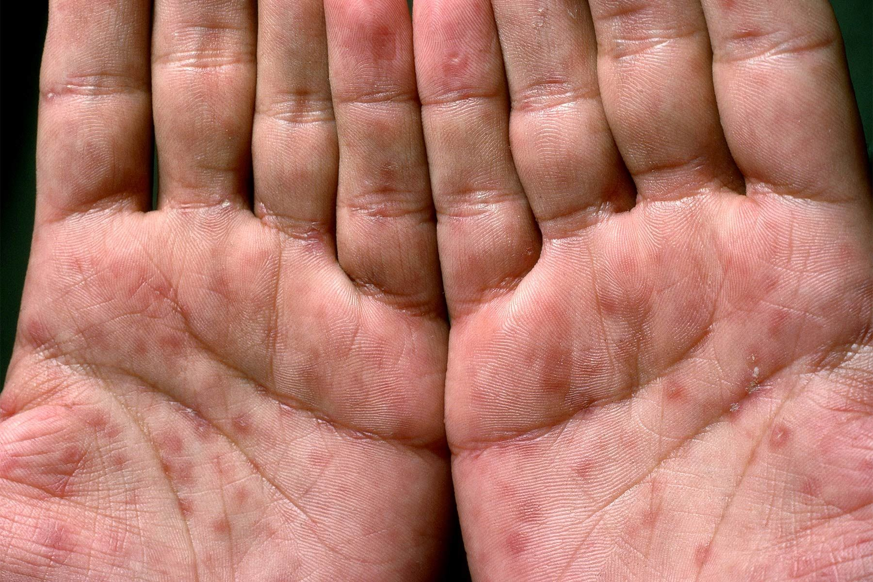 hpv symptoms on hands)