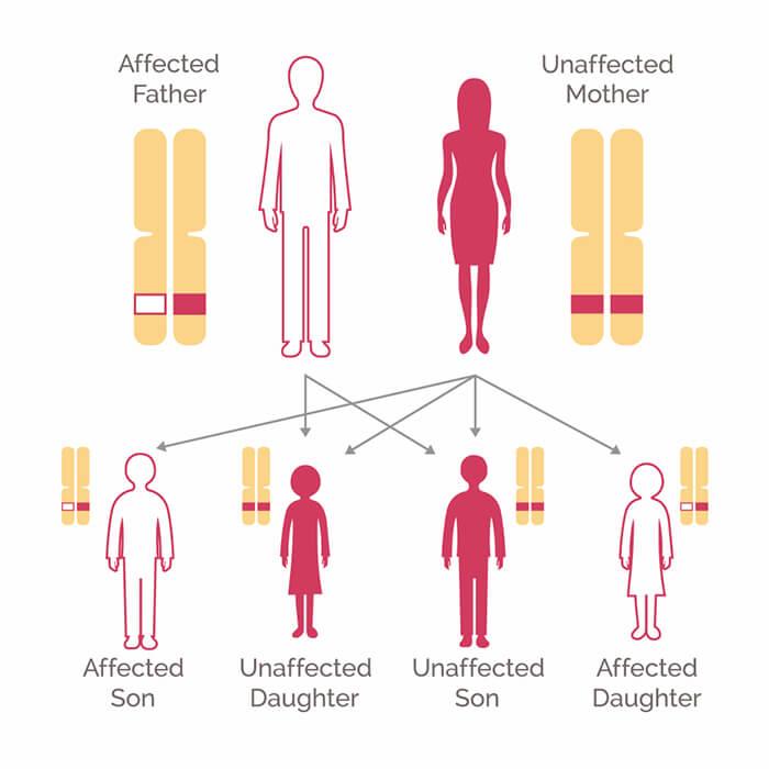 metastatic cancer hereditary)