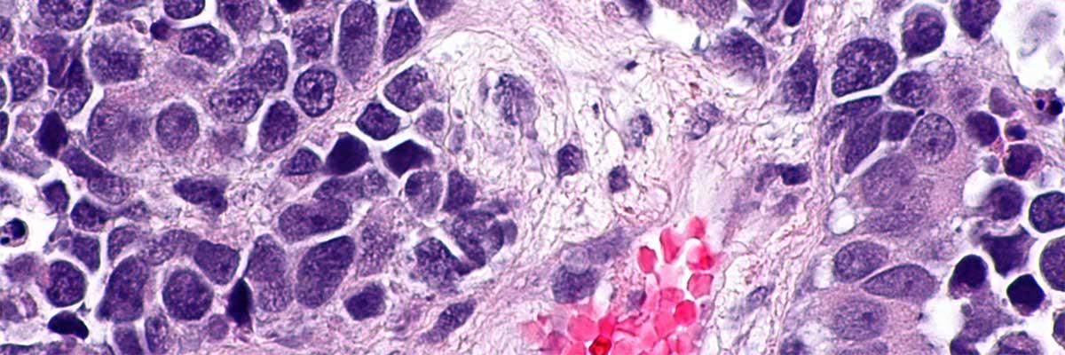 cancer de vezica urinara