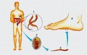 tratamentul parazitului kruger